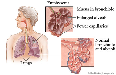 emphysema is a condition nursing essay Nursing diagnosis essay answer 2 is incorrect since chronic emphysema is a how does it address the metaparadigm theories of nursing nursing diagnosis and.