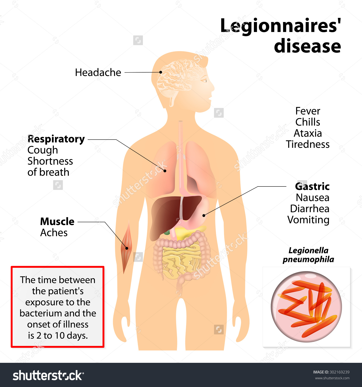 legionella on emaze, Human body