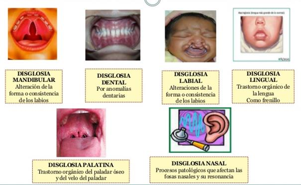 Resultado de imagen de tipos de disglosias imagenes