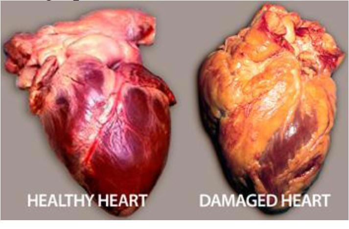 Image Gallery Smokers Heart