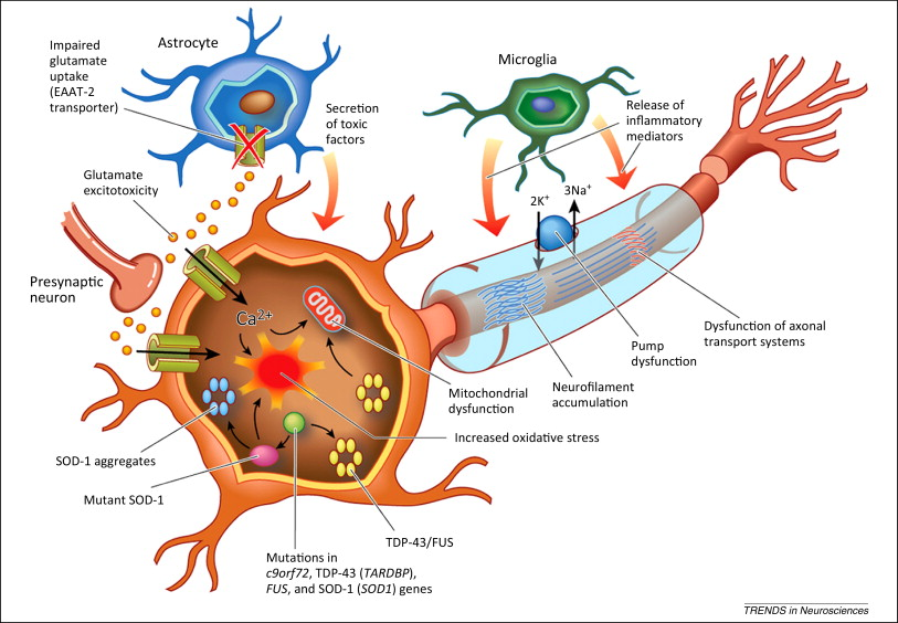 an analysis of amyotrophic lateral sclerosis als Analysis of neurotrophic factors in limb and extraocular muscles of mouse model of amyotrophic lateral sclerosis vahid m harandi1, susanne lindquist2, shrikant shantilal kolan1, thomas bra¨nnstro¨m3, jing-xia liu1.