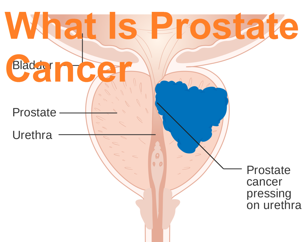 taking a look at prostate cancer T hey look like glowing jade necklaces of such unearthly brilliance they could be a ming emperor's but if dr gerardo fernandez is right, the green fluorescent images of prostate cells could be.