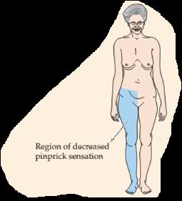 Pernas dor do dor direito lado costas nas na e nas formigamento