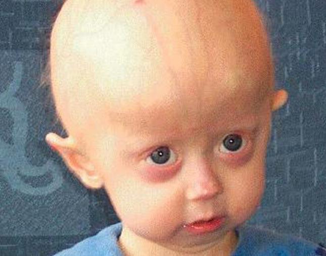 Enfermedades Cromosomicas Pdf